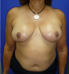 Breast Reduction After Photo by Mark Markarian, MD, MSPH; Wellesley, MA - Case 31813