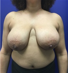 Breast Reduction Before Photo by Mark Markarian, MD, MSPH; Wellesley, MA - Case 31813