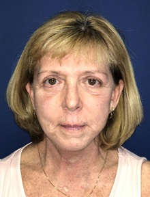 Facelift After Photo by Mark Markarian, MD, MSPH; Wellesley, MA - Case 31825