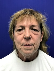 Facelift Before Photo by Mark Markarian, MD, MSPH; Wellesley, MA - Case 31825