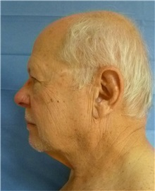 Facelift Before Photo by Mark Markarian, MD, MSPH, FACS; Wellesley, MA - Case 31826
