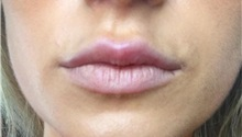 Lip Augmentation / Enhancement After Photo by Mark Markarian, MD, MSPH; Wellesley, MA - Case 31841
