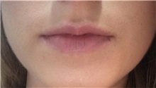 Lip Augmentation / Enhancement Before Photo by Mark Markarian, MD, MSPH; Wellesley, MA - Case 31841