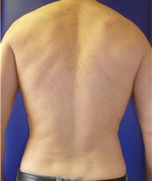 Liposuction After Photo by Mark Markarian, MD, MSPH; Wellesley, MA - Case 31843