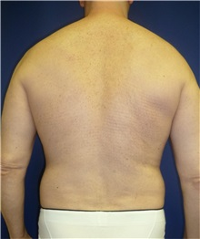 Liposuction Before Photo by Mark Markarian, MD, MSPH; Wellesley, MA - Case 31843