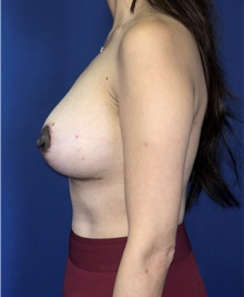 Breast Lift After Photo by Mark Markarian, MD, MSPH, FACS; Wellesley, MA - Case 38068