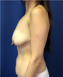 Breast Lift Before Photo by Mark Markarian, MD, MSPH, FACS; Wellesley, MA - Case 38068