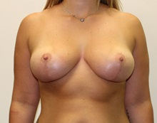 Breast Lift After Photo by James Lee, MD; Laval, QC - Case 35565