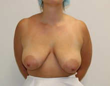 Breast Lift Before Photo by James Lee, MD; Laval, QC - Case 35565