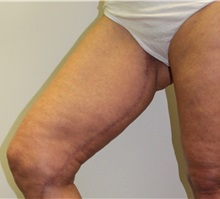 Thigh Lift After Photo by James Lee, MD; Laval, QC - Case 35566
