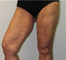 Thigh Lift Before Photo by James Lee, MD; Laval, QC - Case 35566