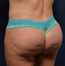 Buttock Lift with Augmentation After Photo by Michael Frederick, MD; Palm Beach Gardens, FL - Case 35874