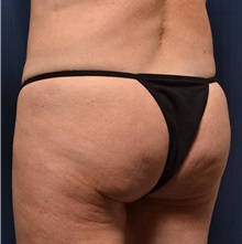 Buttock Lift with Augmentation Before Photo by Michael Frederick, MD; Palm Beach Gardens, FL - Case 35874