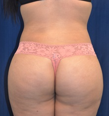 Buttock Lift with Augmentation After Photo by Michael Frederick, MD; Palm Beach Gardens, FL - Case 35877