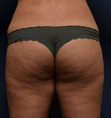 Buttock Lift with Augmentation Before Photo by Michael Frederick, MD; Palm Beach Gardens, FL - Case 35877