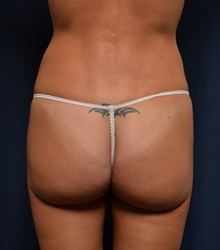 Buttock Lift with Augmentation After Photo by Michael Frederick, MD; West palm beach, FL - Case 35878