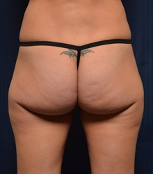 Buttock Lift with Augmentation Before Photo by Michael Frederick, MD; West palm beach, FL - Case 35878