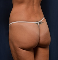 Buttock Lift with Augmentation After Photo by Michael Frederick, MD; Fort Lauderdale, FL - Case 35878