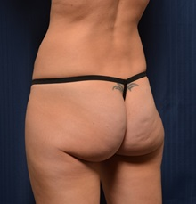 Buttock Lift with Augmentation Before Photo by Michael Frederick, MD; Fort Lauderdale, FL - Case 35878