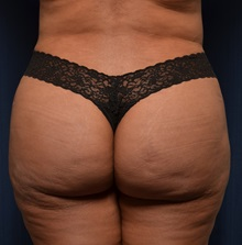 Buttock Lift with Augmentation After Photo by Michael Frederick, MD; Palm Beach Gardens, FL - Case 35879