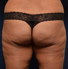 Buttock Lift with Augmentation Before Photo by Michael Frederick, MD; Palm Beach Gardens, FL - Case 35879