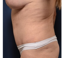 Buttock Lift with Augmentation After Photo by Michael Frederick, MD; Palm Beach Gardens, FL - Case 35880