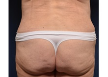 Buttock Lift with Augmentation After Photo by Michael Frederick, MD; West palm beach, FL - Case 35880