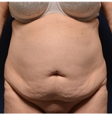 Buttock Lift with Augmentation Before Photo by Michael Frederick, MD; West palm beach, FL - Case 35880