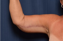 Arm Lift After Photo by Michael Frederick, MD; West palm beach, FL - Case 35881