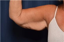 Arm Lift Before Photo by Michael Frederick, MD; Fort Lauderdale, FL - Case 35881