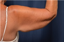 Arm Lift Before Photo by Michael Frederick, MD; West palm beach, FL - Case 35881