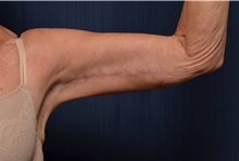 Arm Lift After Photo by Michael Frederick, MD; Fort Lauderdale, FL - Case 35883