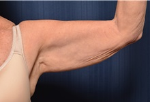 Arm Lift Before Photo by Michael Frederick, MD; Fort Lauderdale, FL - Case 35883
