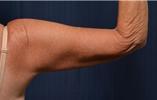 Arm Lift After Photo by Michael Frederick, MD; West palm beach, FL - Case 35883