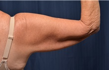 Arm Lift Before Photo by Michael Frederick, MD; West palm beach, FL - Case 35883