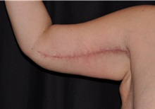 Arm Lift After Photo by Michael Frederick, MD; Fort Lauderdale, FL - Case 35884