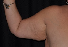 Arm Lift Before Photo by Michael Frederick, MD; Fort Lauderdale, FL - Case 35884