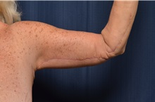 Arm Lift After Photo by Michael Frederick, MD; Fort Lauderdale, FL - Case 35885