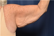 Arm Lift Before Photo by Michael Frederick, MD; Fort Lauderdale, FL - Case 35885