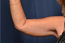 Arm Lift After Photo by Michael Frederick, MD; Fort Lauderdale, FL - Case 35886