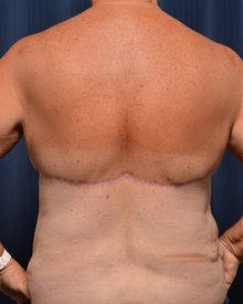 Body Contouring After Photo by Michael Frederick, MD; Fort Lauderdale, FL - Case 35889