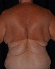 Body Contouring Before Photo by Michael Frederick, MD; Fort Lauderdale, FL - Case 35889