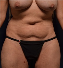 Body Lift Before Photo by Michael Frederick, MD; Palm Beach Gardens, FL - Case 35891