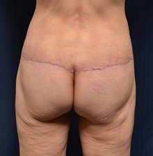 Body Lift After Photo by Michael Frederick, MD; West palm beach, FL - Case 35893