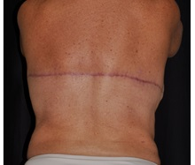 Body Contouring After Photo by Michael Frederick, MD; Fort Lauderdale, FL - Case 35894