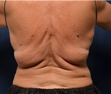 Body Contouring Before Photo by Michael Frederick, MD; Fort Lauderdale, FL - Case 35894