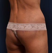 Body Lift After Photo by Michael Frederick, MD; Palm Beach Gardens, FL - Case 35895