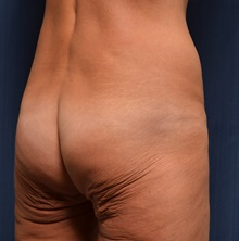 Body Lift Before Photo by Michael Frederick, MD; Palm Beach Gardens, FL - Case 35895