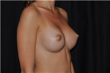 Breast Augmentation After Photo by Michael Frederick, MD; Fort Lauderdale, FL - Case 35896