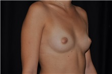 Breast Augmentation Before Photo by Michael Frederick, MD; Fort Lauderdale, FL - Case 35896
